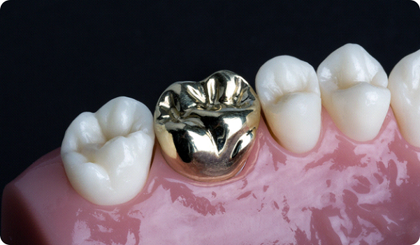 Metal Crowns