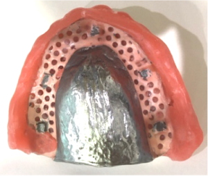 Metal base dentures